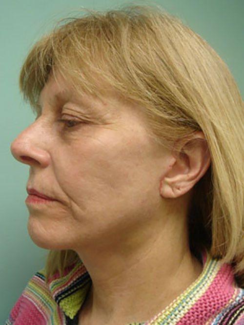 facelift patient 814