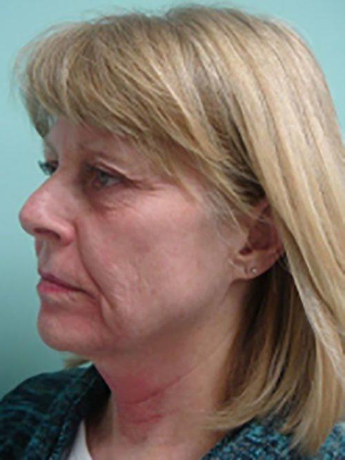 facelift patient 815