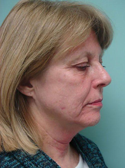 facelift patient 817