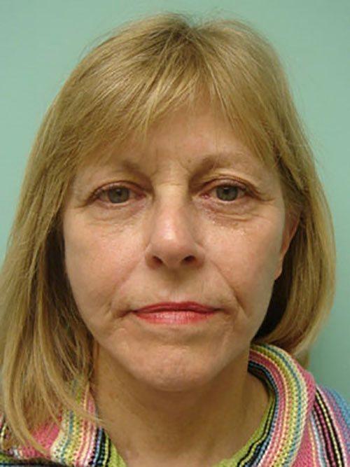 facelift patient 818