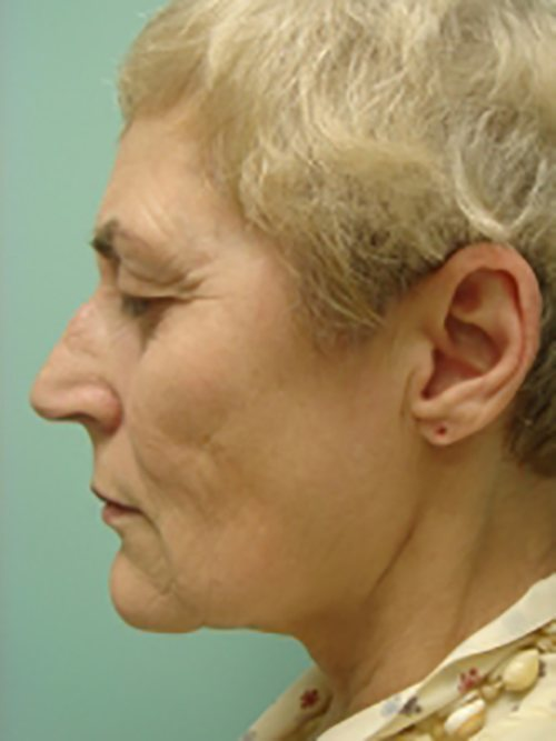 facelift patient 822