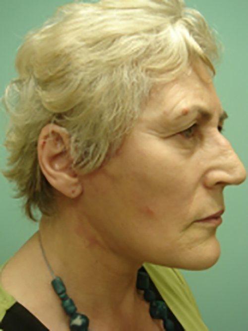 facelift patient 823