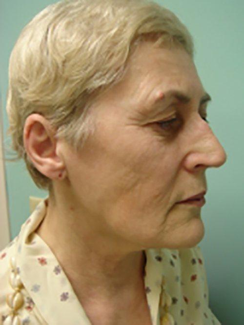 facelift patient 824