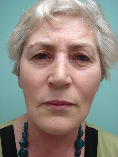facelift patient 825