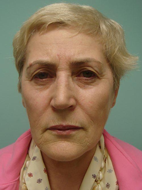 facelift patient 826