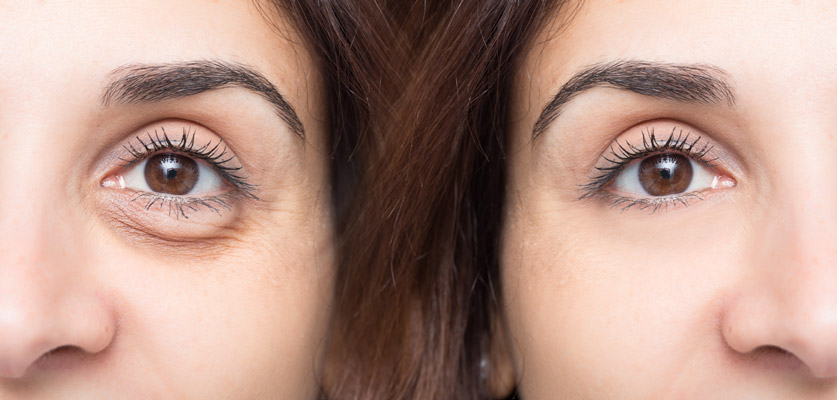 side by side of eyes before and after
