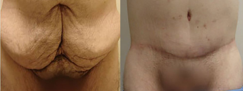 Erella Male Tummy Tuck results