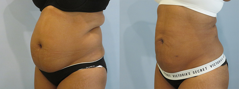 Smartlipo Results before & After