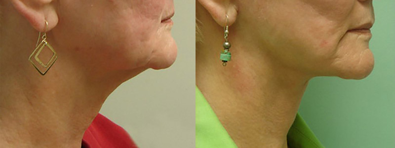 facelift necklift results