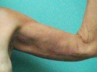 arm lift patient 2136