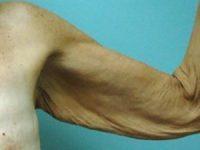 arm lift patient 2137