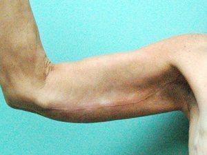 arm lift patient 2138