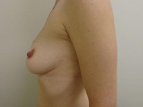 breast augmentation patient 2493