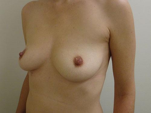 breast augmentation patient 2495