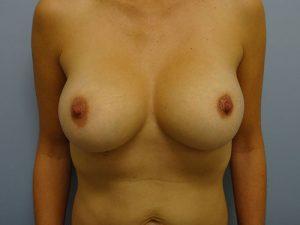 breast augmentation patient 2496