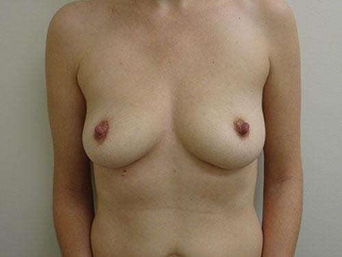 breast augmentation patient 2497