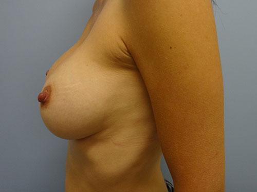 breast augmentation patient 2498