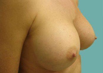 breast augmentation patient 2509