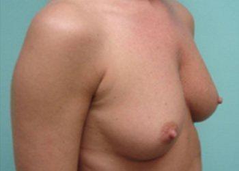 breast augmentation patient 2510
