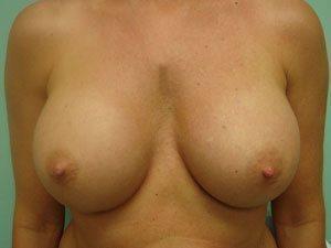 breast augmentation patient 2511