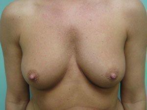 breast augmentation patient 2512