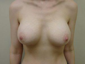 breast augmentation patient 2518