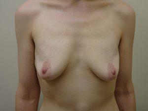 breast augmentation patient 2519