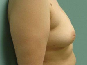 breast augmentation patient 2521