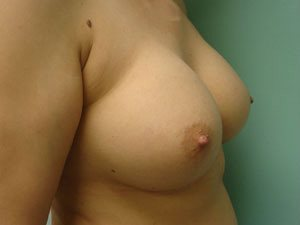 breast augmentation patient 2522