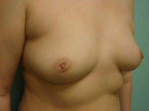 breast augmentation patient 2523