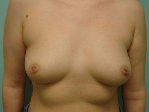 breast augmentation patient 2525
