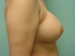 breast augmentation patient 2526