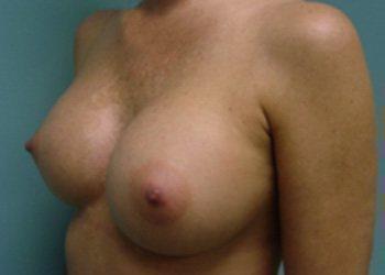 breast augmentation patient 2528