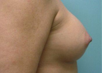 breast augmentation patient 2530
