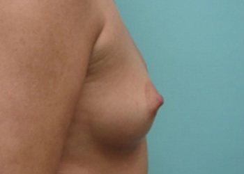 breast augmentation patient 2531