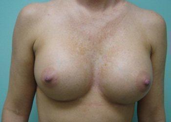 breast augmentation patient 2532