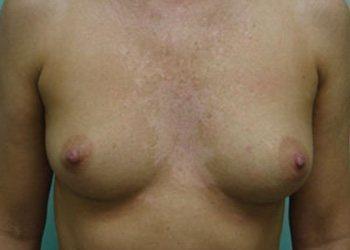 breast augmentation patient 2533