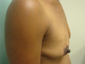 breast augmentation patient 2538