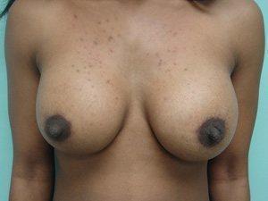 breast augmentation patient 2539