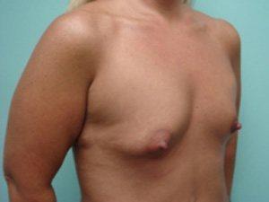 breast augmentation patient 2545