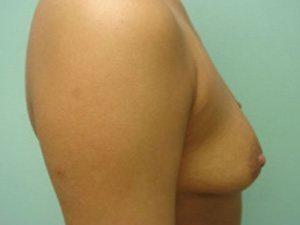 breast augmentation patient 2549