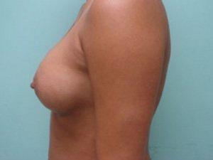 breast augmentation patient 2550