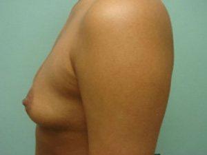 breast augmentation patient 2551