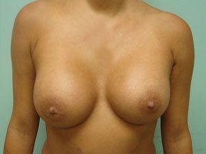 breast augmentation patient 2552