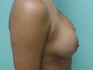 breast augmentation patient 2554