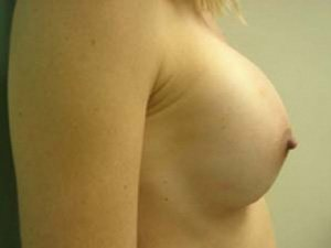 breast augmentation patient 2556