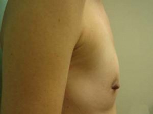 breast augmentation patient 2557