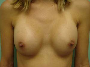 breast augmentation patient 2560