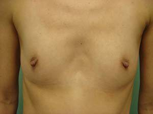 breast augmentation patient 2561
