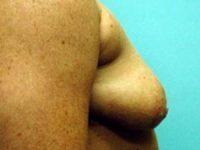 breast augmentation patient 2563